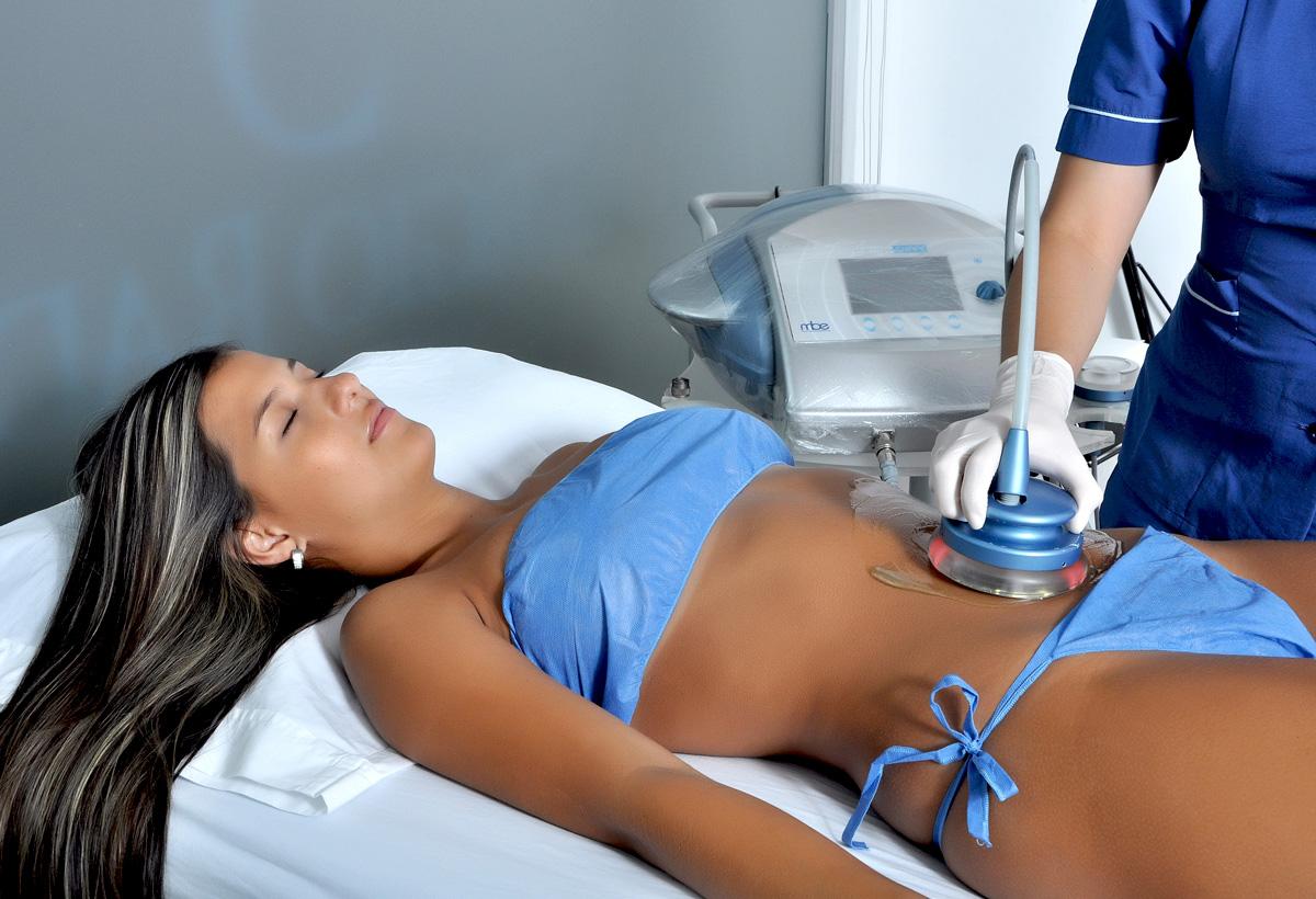 Tratamiento de cavitacion-Sergio-Rada