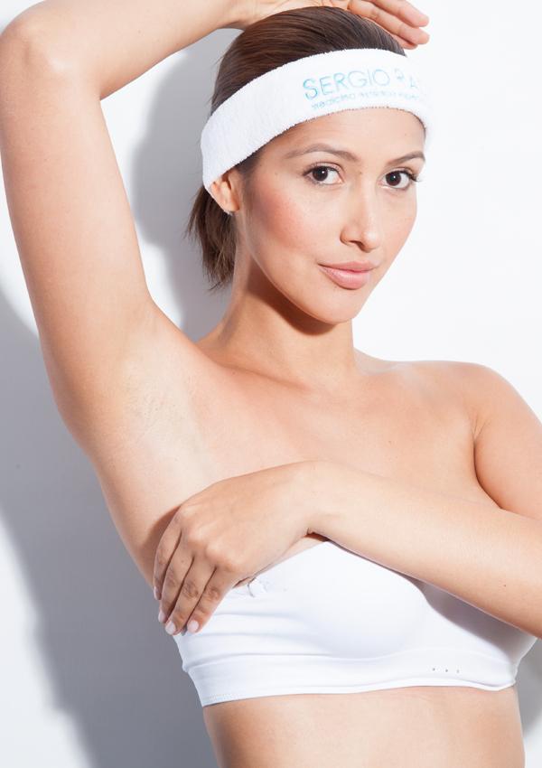Tratamiento de depilacion-laser-Sergio-Rada